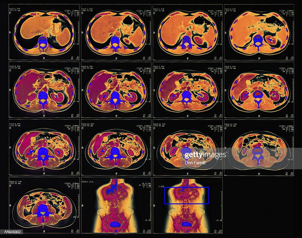 Cat scan of abdominal area : Stock Photo