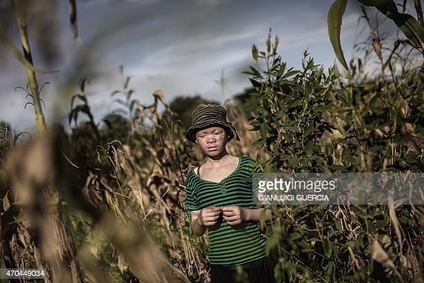 Catherine Amidu a 12yearold Malawian albino girl poses in a maize field in the traditional authority area of Nkole Machinga district on April 17 2015...