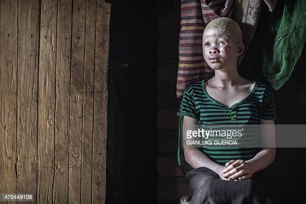 Catherine Amidu a 12yearold Malawian albino girl sits in her home in the traditional authority area of Nkole Machinga district on April 17 2015 Six...