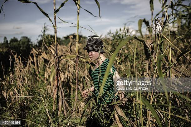 Catherine Amidu a 12yearold Malawian albino girl walks through maize field in the traditional authority area of Nkole Machinga district on April 17...