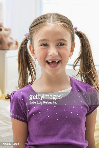 Caucasian girl smiling with missing teeth