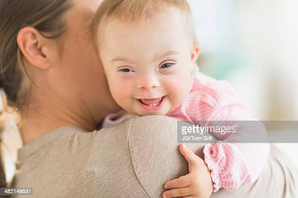 Caucasian mother holding baby girl with Down Syndrome