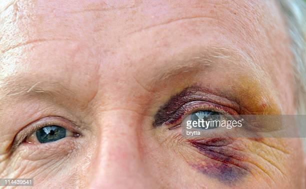 Caucasian senior  man with bruises eye looking at camera