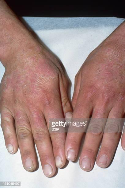 Cement Eczema