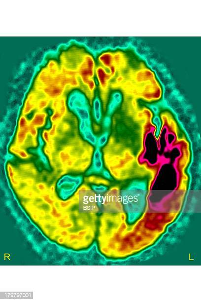 Cerebral Ischemia Scan Stroke Due To Arterial Thrombosis In left Hemisphere Ct Scan Of Brain Axial View