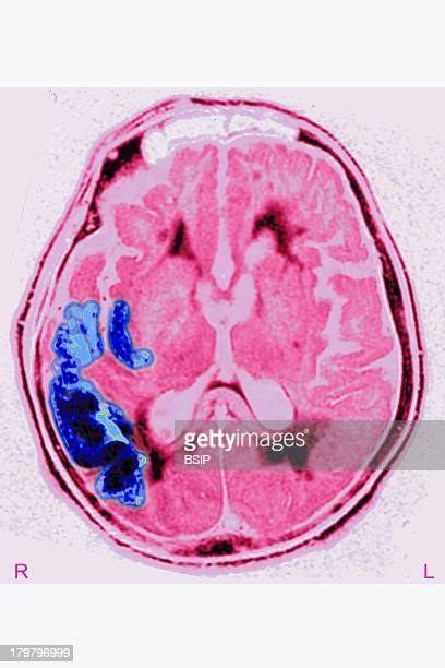 Cerebral Ischemia Scan Stroke Due To Arterial Thrombosis In Right Hemisphere Ct Scan Of Brain Axial View