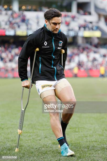Chad Wingard of the Power hobbles off after sustaining a leg injury during the round 18 AFL match between the Melbourne Demons and the Port Adelaide...
