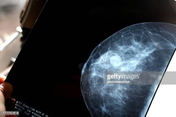Überprüfung Mammografie