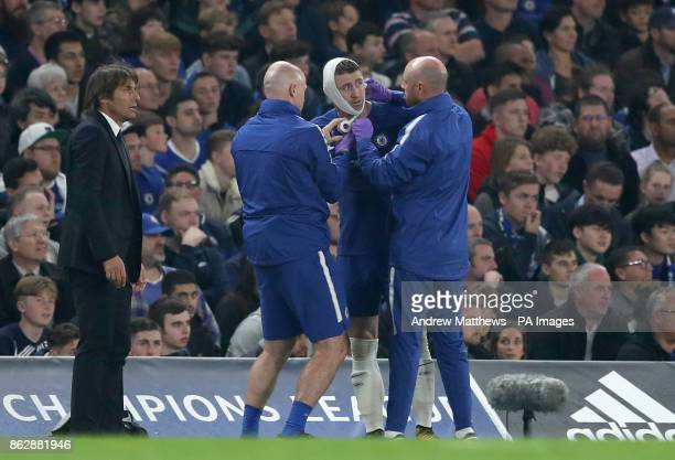 Chelsea's Gary Cahill receives medical treatment during the UEFA Champions League Group C match at Stamford Bridge London