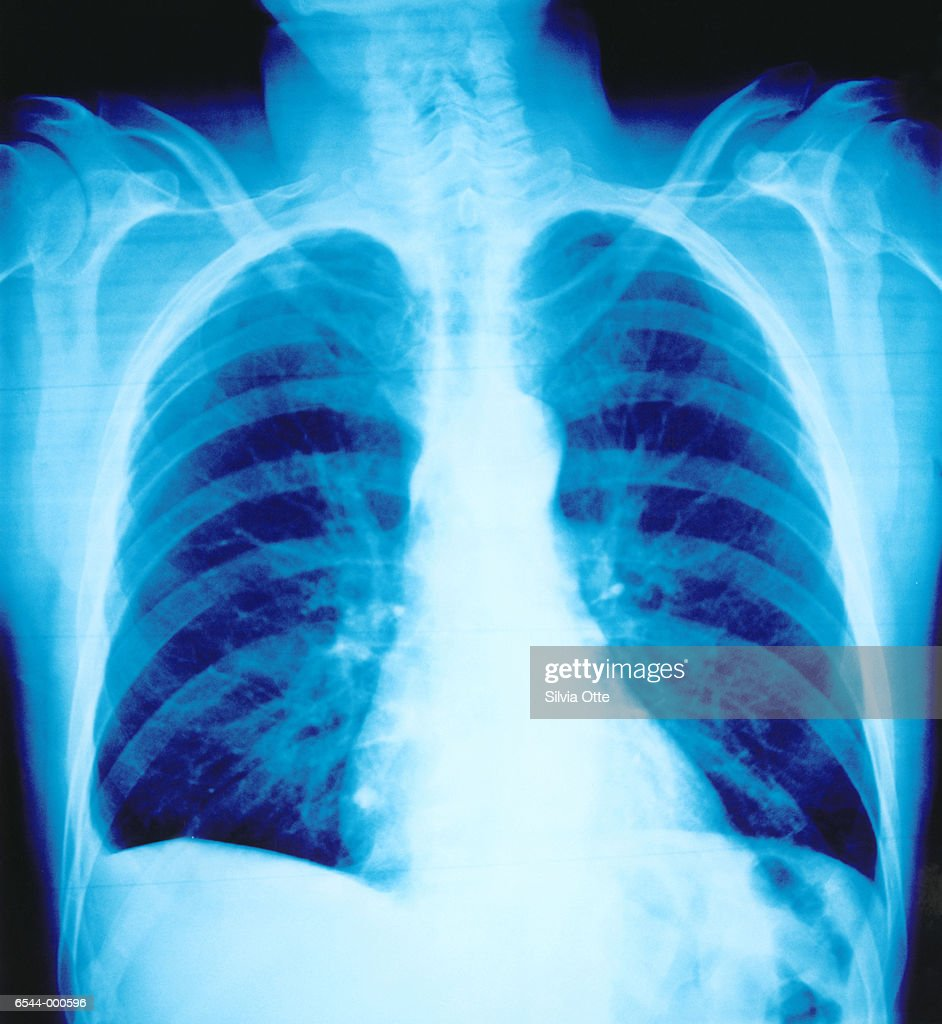 Chest Radiograph : Stock Photo