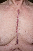 Shows where sternum was cut and chest drains were inserted in a 66 year old male after open heart surgery