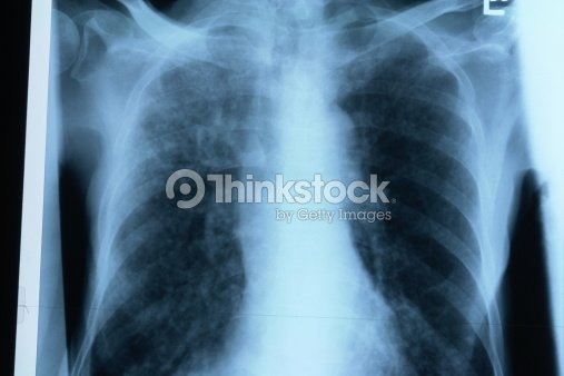 Xray Brust Stock-Foto   Thinkstock