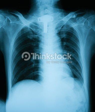 Snap Brustkorb Brustbeinanatomie Knochen Stock Fotografie und mehr ...