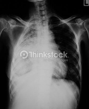 Chest Xray Image Of Lung Infection Stock Photo | Thinkstock
