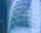 Chest x-ray medical science background. in blue tone.