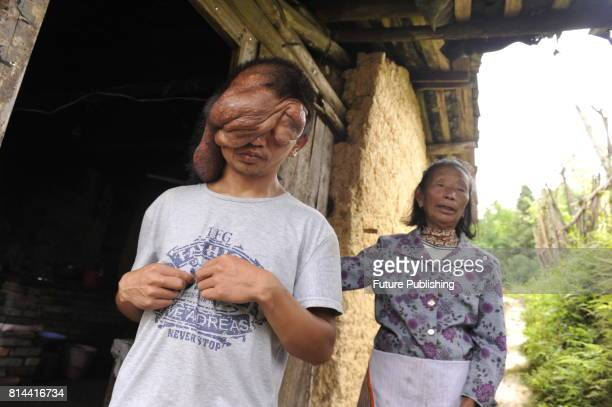 Chi Zhoujing stays with his granny at home in the remote Shangfeng village in Minqing county on June 21 2017 in Minqing China The 24yearold man...