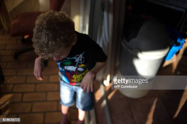 A child affected by Costello syndrome and currently treated with cannabis oil is seen on the balcony of his home on July 18 2017 in Johannesburg...