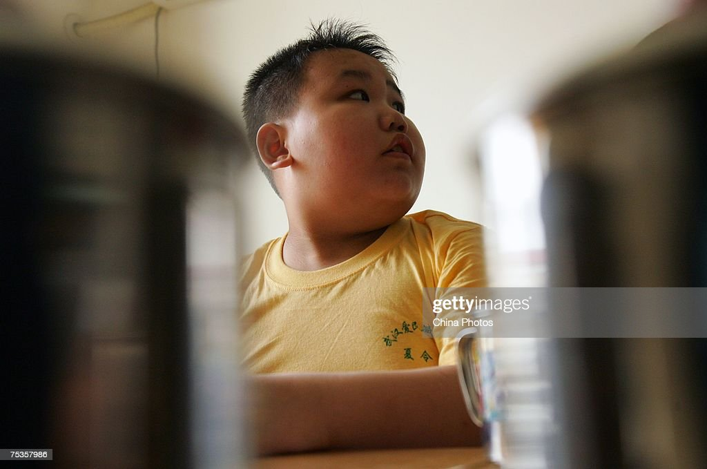 A child reacts at his dormitory of a base of the Aimin Slimming Centre on July 10, 2007 in Wuhan of Hubei Province, China. Doctors in the center have combined acupuncture, exercise and diet to help about 110 obese teenagers from 9 to 20 years old lose weight during one month. An official from the Ministry of Health revealed that more than 200 million Chinese people are overweight.