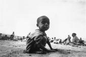 A child suffering from starvation due to food shortages caused by the war in Ethiopia