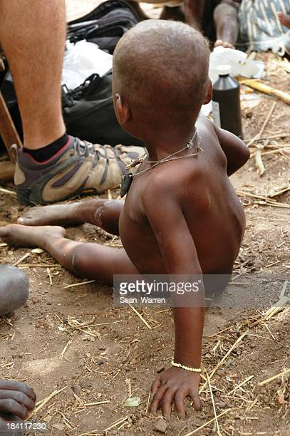 Child Waiting For Aid Worker