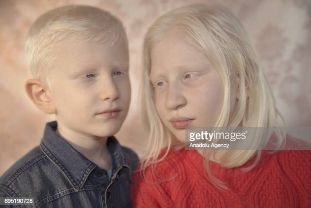 Childre with albinism Furkan and Hatice Yilmaz pose for a photo in Izmir province of Turkey on November 06 2016 Albinos a rare group of genetic...