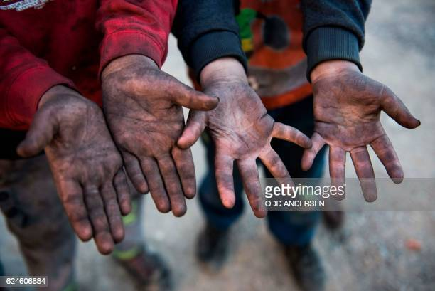 Children living near burning oil wells set ablaze by retreating Islamic State jihadists burn in the background display their blackened hands in the...