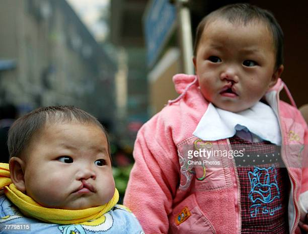 Children suffering from cleft lip and palate wait for an examination at the Nanjing Drum Tower Hospital during registration for treatment at a...