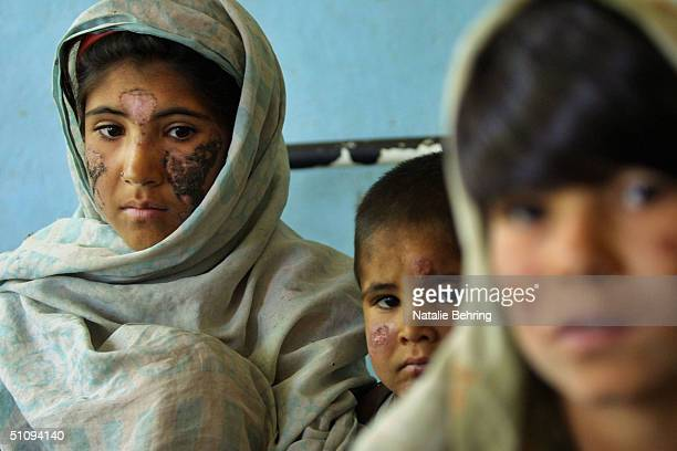 Children Suffering From Cutaneous Leishmaniasis A Disfiguring And Disabling Skin Disease Wait For Treatment At A Hospital May 8 2002 In Kabul...