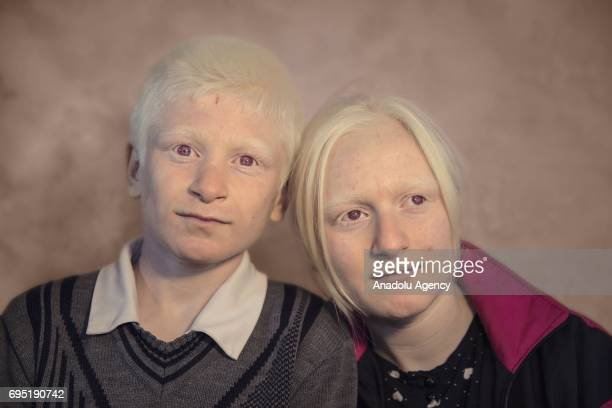 Children with albinism Abdurrahman and Busra Adin pose for a photo in Mardin province of Turkey on December 21 2016 Albinos a rare group of genetic...