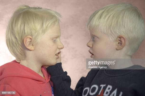 Children with albinism Cem and Cemre Akpinar pose for a photo in Istanbul province of Turkey on December 18 2016 Albinos a rare group of genetic...