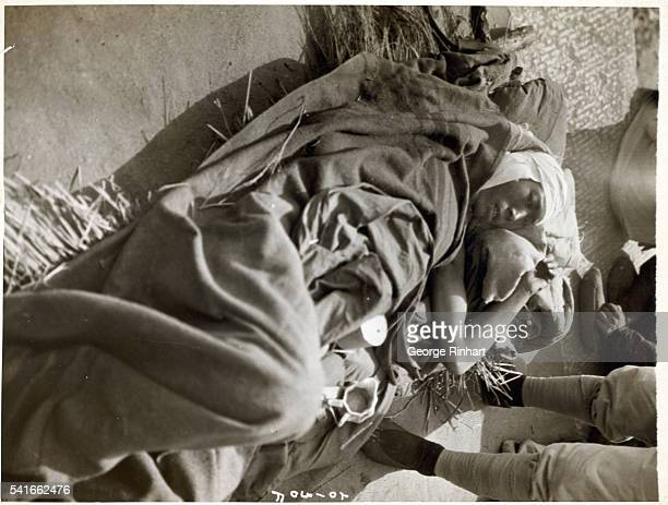 A Chinese Nationalist soldier wounded on the Shankaikwan front is shown at a nearby railway station awaiting transfer to a base hospital He was one...