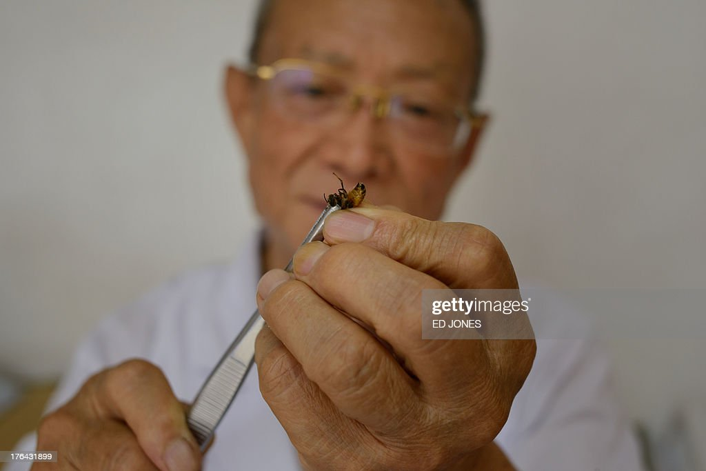China-medicine-science-bee,FEATURE by Neil CONNOR In a photo taken on August 2, 2013, doctor of traditional Chinese medicine Wang Menglin uses tweezers to hold a bee at his clinic on the outskirts of Beijing. Patients in China are swarming to acupuncture clinics to be given bee stings to treat or ward off life-threatening illness, arthritis, and cancer, practitioners say. More than 27,000 people have undergone the painful technique -- each session can involve dozens of punctures -- at Wang Menglin's clinic in Beijing, says the bee acupuncturist who makes his living from believers in the concept. AFP PHOTO / Ed Jones