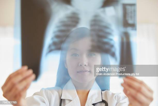 Chinese doctor examining chest x-ray
