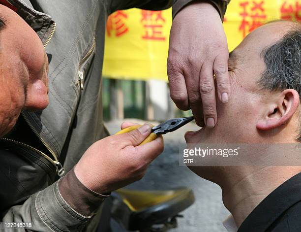 Chinese man gets a bad tooth removed by a street dentist using a pair of pliers in Xian northern China's Shaanxi province on April 5 2008 This street...