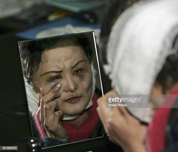 Chinese woman Zhang Jing known as the 'Ugly Girl' looks into a mirror after doctors removed the stitches from her fourth session of cosmetic surgery...