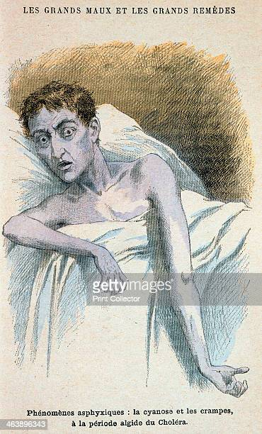 Cholera patient Patient in typical cholera attitude From French medical book published c1890