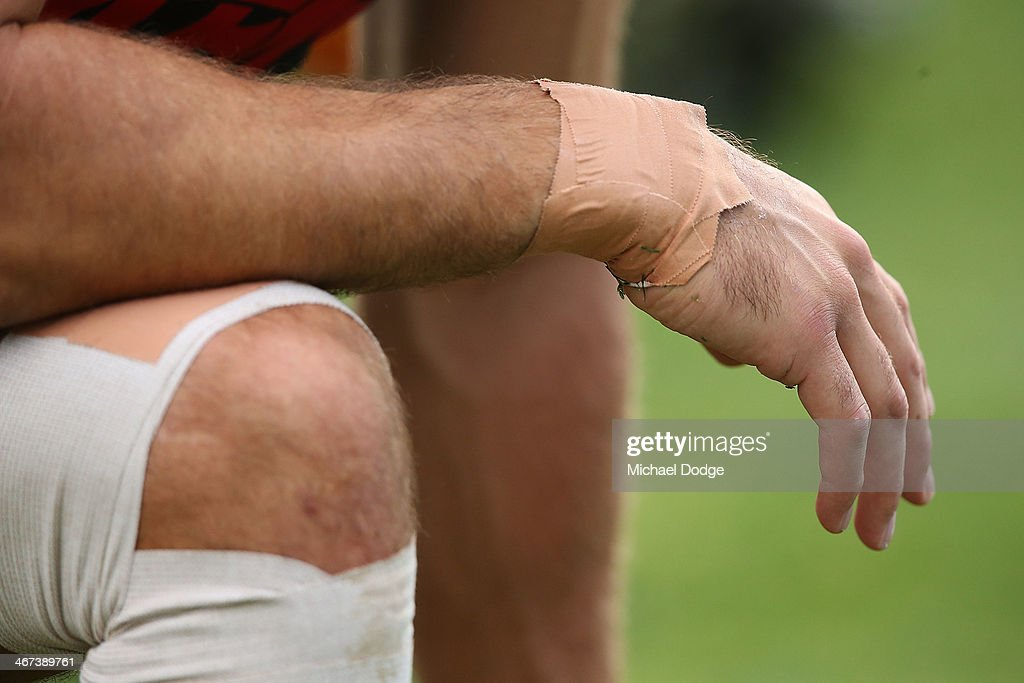 Chris Dawes shows off his bandages while stretching during a Melbourne Demons AFL training session at Gosch's Paddock on February 7, 2014 in Melbourne, Australia.