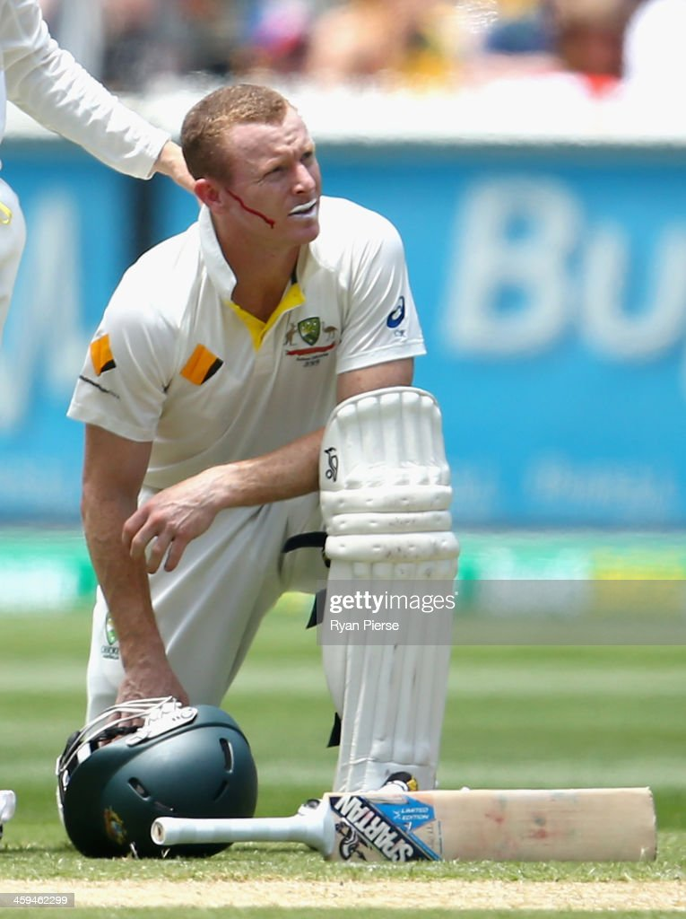 <a gi-track='captionPersonalityLinkClicked' href=/galleries/search?phrase=Chris+Rogers+-+Cricket+Player&family=editorial&specificpeople=178255 ng-click='$event.stopPropagation()'>Chris Rogers</a> of Australia recovers after he was struck in the head by a delivery from Stuart Broad of England during day two of the Fourth Ashes Test Match between Australia and England at Melbourne Cricket Ground on December 27, 2013 in Melbourne, Australia.