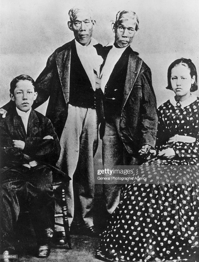 The most famous Siamese twins, Chang and Eng Bunker (1811 - 1874), after whom the rare condition is named. Born in Siam (modern Thailand), they married two sisters and had nine children each, eventually dying on the same day.