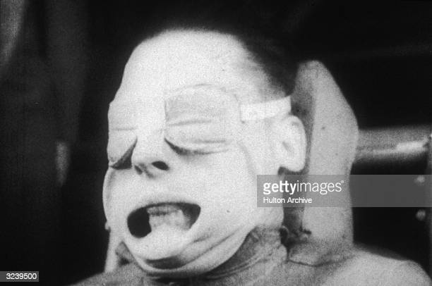 Headshot of a US military test subject undergoing Gforce testing while seated and wearing padded eye protection His mouth is pushed open with his...