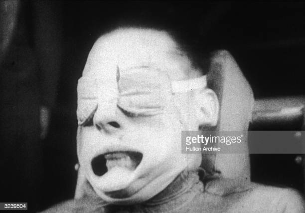 Headshot of a US military test subject undergoing Gforce testing His mouth is pushed open with his cheeks pulled back He is seated and wears eye...
