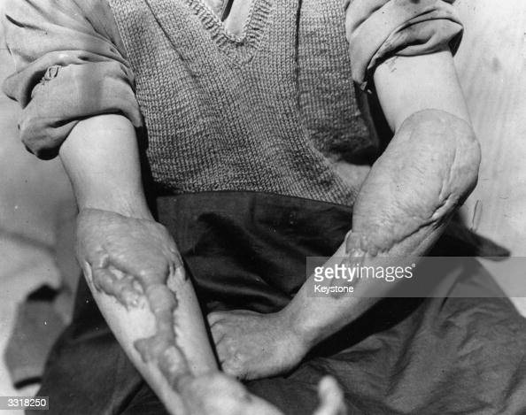 A victim of the American atomic bombing of Hiroshima Japan shows the burns on his arms