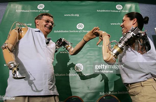 Claudia Mitchell and Jesse Sullivan 'highfive' each other as they demonstrate the functionality of their prosthetic arms during a news conference on...