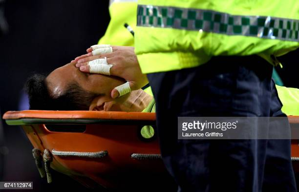 Claudio Bravo of Manchester City is stretchered off due to an injury during the Premier League match between Manchester City and Manchester United at...