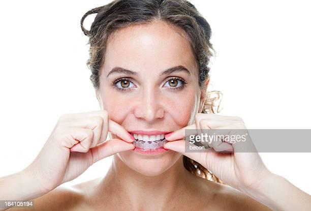 クリア歯列矯正器