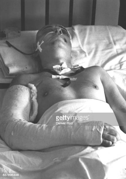 Clifford Leaf at Denver General Hospital He still has a 38 caliber bullet in his brain Credit Denver Post