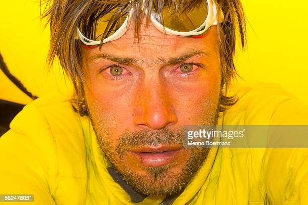 A climber with sunburned eyes in his tent high on Mount McKinley, Alaska.