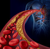 Clogged artery and atherosclerosis disease medical concept with a three dimensional human artery with blood cells that is blocked by plaque buildup of cholesterol as a symbol of arteriosclerotic vascu
