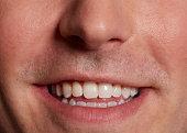 Close Up 40
