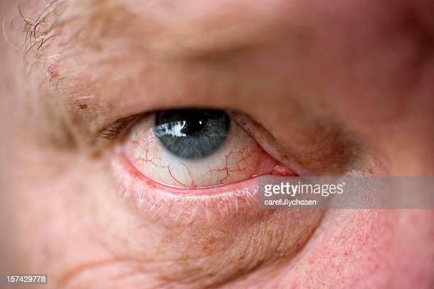 close up blood shot eye